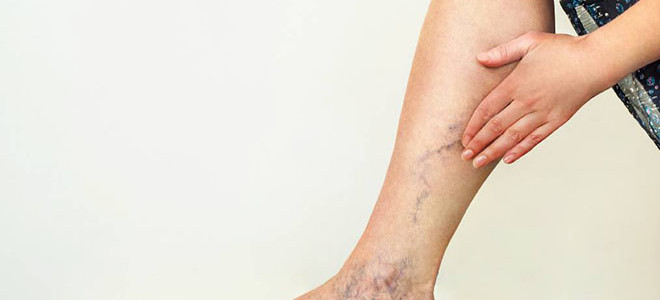 Этиология и патогенез варикоза ног