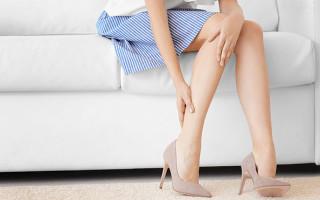 Как избежать варикоза из-за работы