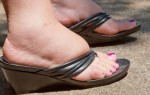 Отеки ног в области лодыжки и щиколотки