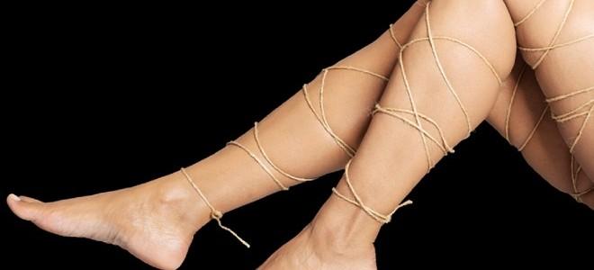 Варикозная болезнь нижних конечностей (ВБНК)