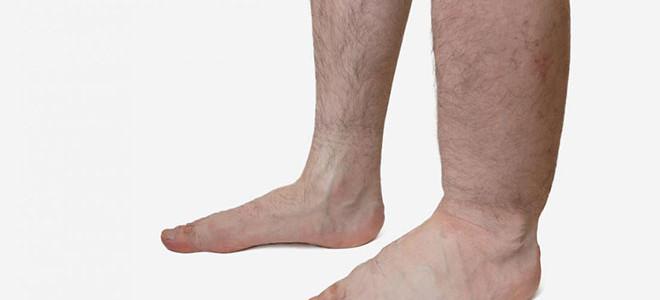 Почему отекают ноги и как с этим бороться?