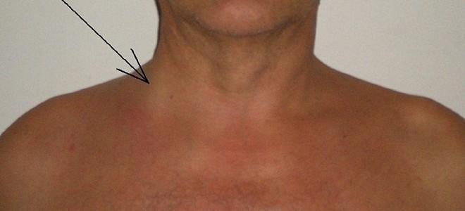 Почему увеличивается яремная вена на шее?