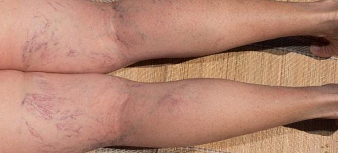 Лечение выступающих на ногах вен