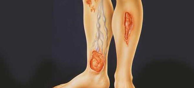 Лечим венозные трофические язвы на ногах
