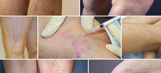 Склеротерапия варикозных вен