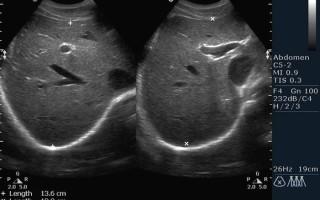 Расширение нижней полой вены