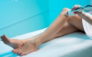 Эффективные способы лечения варикоза