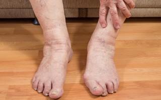 Отеки ног у пожилых: причины, симптоматика и методы лечения