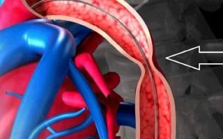 Что такое ангиодисплазия?