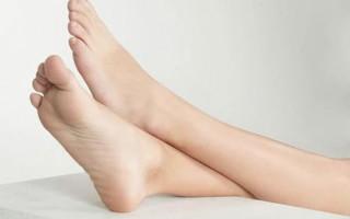 Хроническая венозная недостаточность нижних конечностей