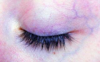 Разбираемся с варикозом глазных вен
