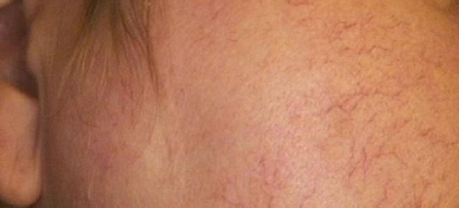 Эффективное лечение варикоза на лице