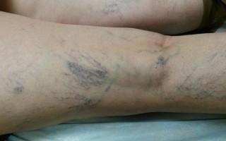Возникновение осложнений при варикозной болезни