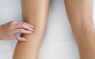 Клинические рекомендации при варикозе