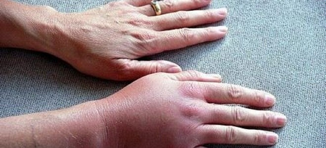 Флебит вены на руке после катетера и уколов
