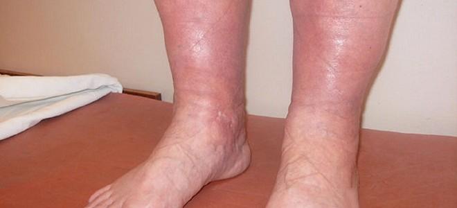 Почему возникает отек ног и как его лечить?