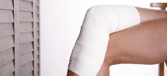 Последствия и осложнения после варикоза