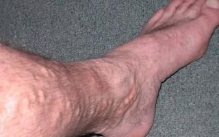 Почему происходит вздутие вен на ногах и как это лечится?