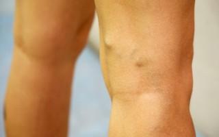 Что представляют из себя варикозные узлы?