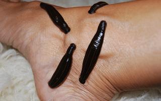Пиявки при варикозе ног