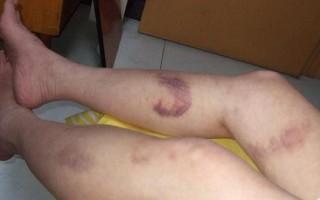 Кровотечение из ран при варикозе