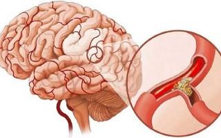Лечение сосудов головы и шеи народными средствами