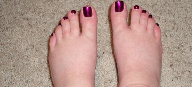 Отёк ног при онкологии