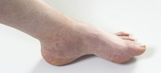 Мочегонные травы при отеках ног
