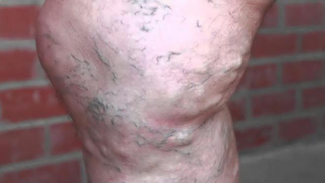 Симптомы варикоза