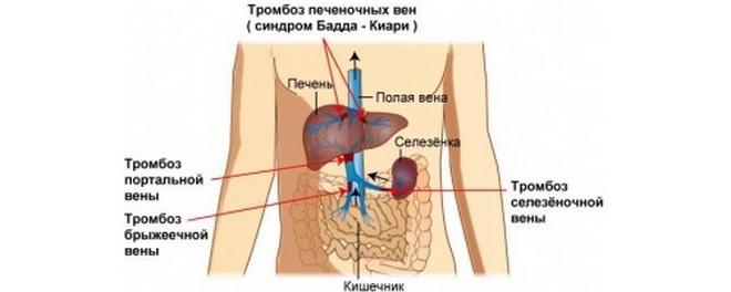Тромбы в печеночных венах