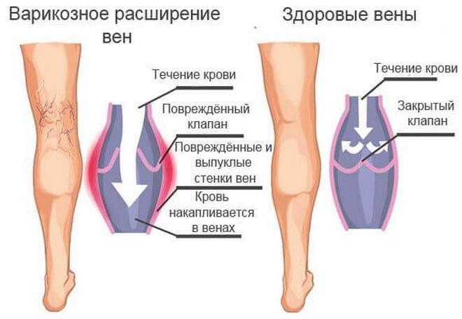 Варикоз и здоровые вены