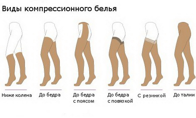 Виды компрессионного белья