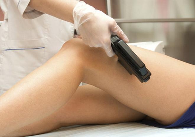 Лазерная терапия варикоза