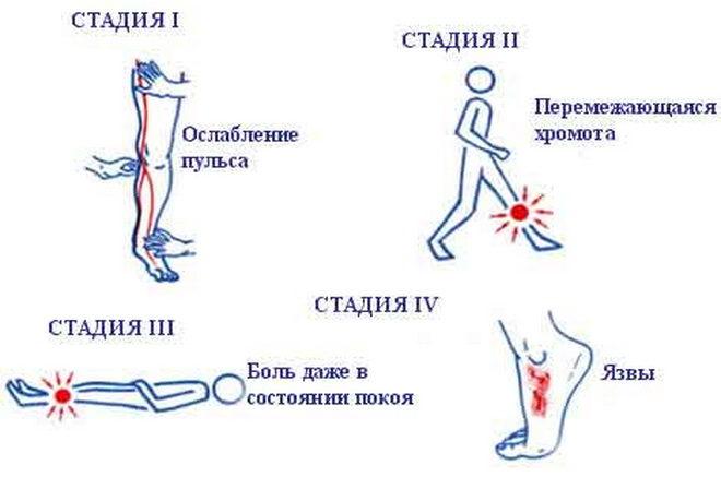Классификация варикоза