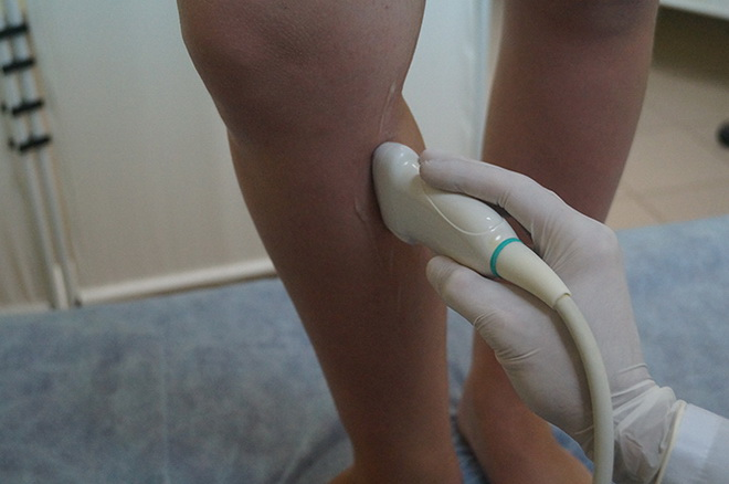 Лечение выступающих ног