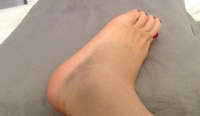 Отеки ног в области щиколотки