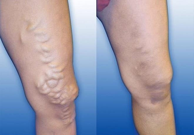 Воспаление вен на ногах