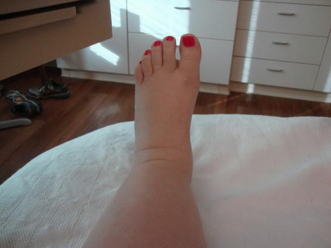 Причины отеков ног после родов