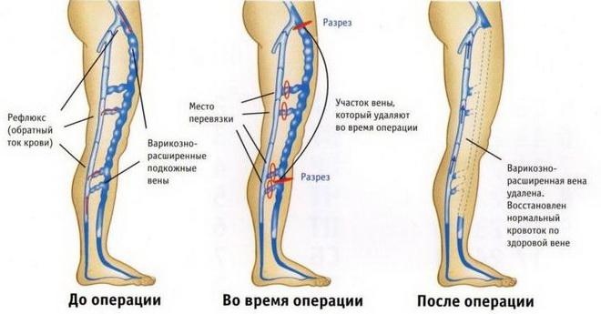 Флебэктомия