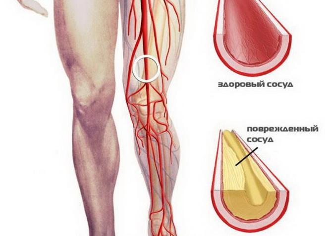 Окклюзия артерий ног