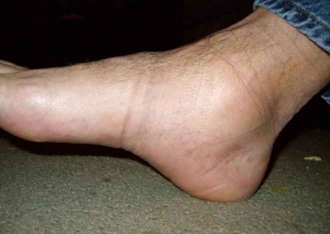 Сильно отекла левая нога внизу что делать