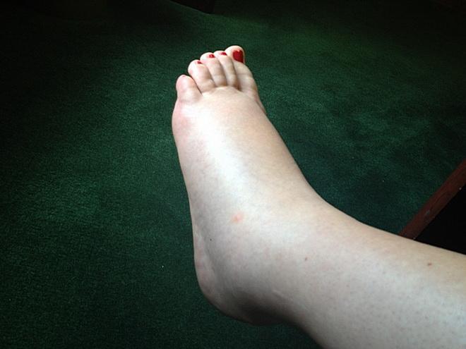 Отекшие ноги