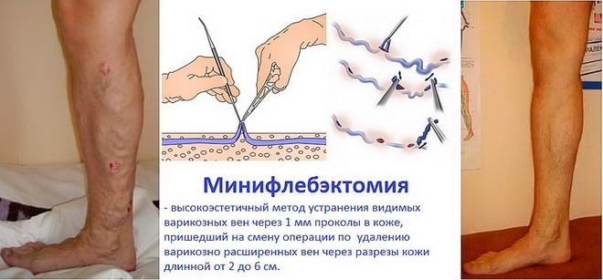 Мини-флебэктомия