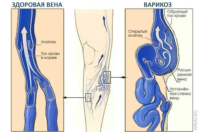 Механизм развития варикоза
