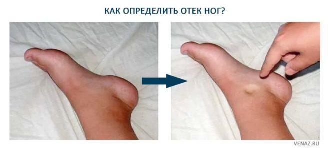 Определяем отек ног