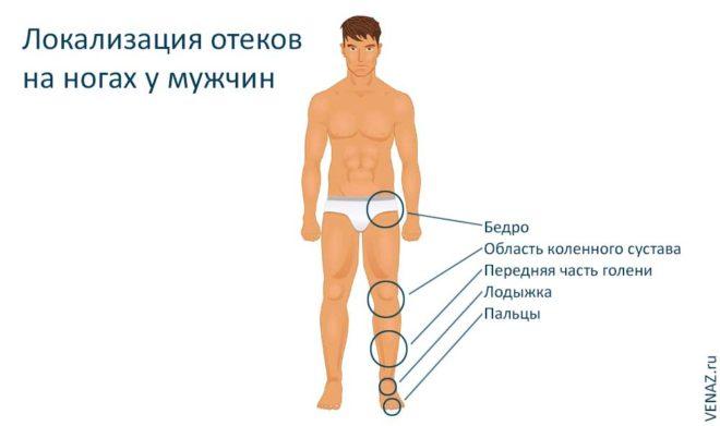 Локализация отеков ног у мужчин
