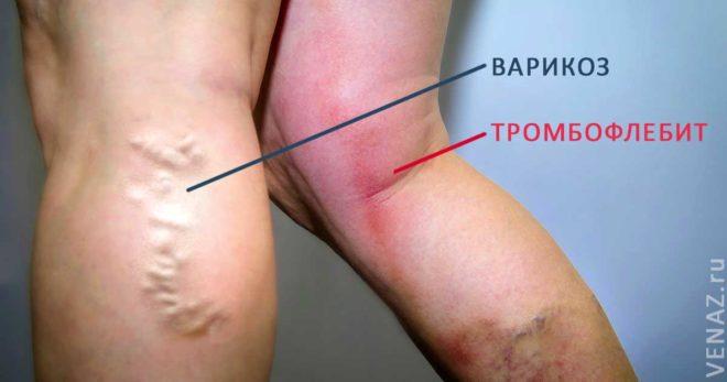 Отличия варикоза и тромбофлебита