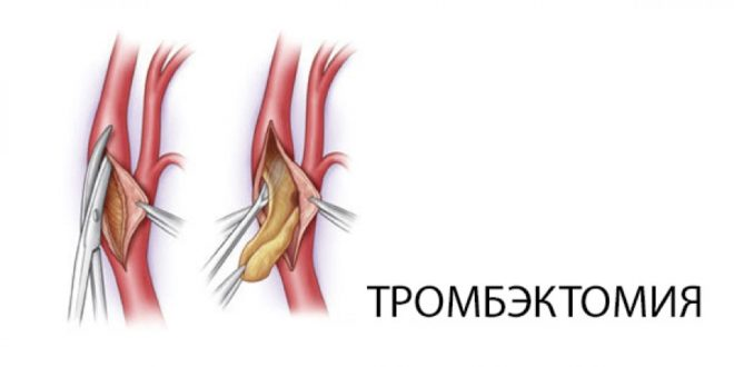 Тромбоэктомия