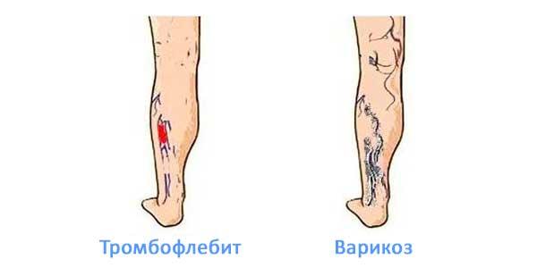 Разница между варикозом и тромбофлебитом