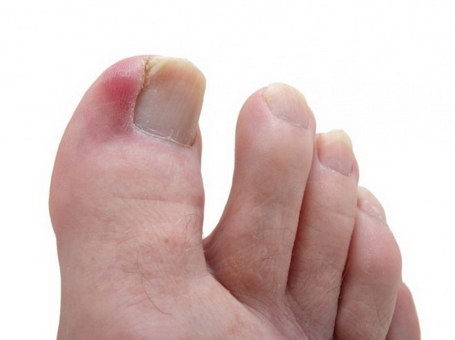 Отек пальцев ног